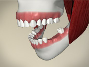ID Dental - Missing Teeth - Introduction