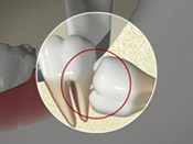 ID Dental  - Wisdom Teeth Horizontal Impaction